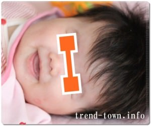 乳児湿疹写真画像を公開*乾燥性皮膚炎。生後4~7ヶ月!