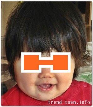 乳児湿疹写真画像を公開*乾燥性皮膚炎。生後8~10ヶ月!