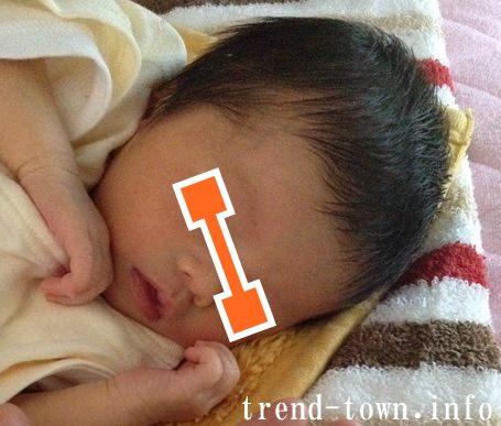 乳児湿疹写真画像を公開*脂漏性皮膚炎。生後0~3ヶ月!