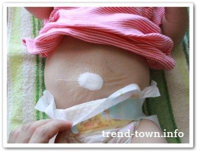 赤ちゃんのでべそが治った!綿球で治った経過写真をお伝えします!!