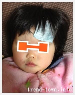 赤ちゃんのおでこにたんこぶ!親が取るべき対処法とは?