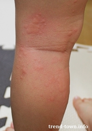 子供の蕁麻疹の原因は何!?親が出来る対処法8つ!!